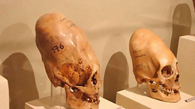Crânios deformados de Ica são enigmas para a antropologia atual