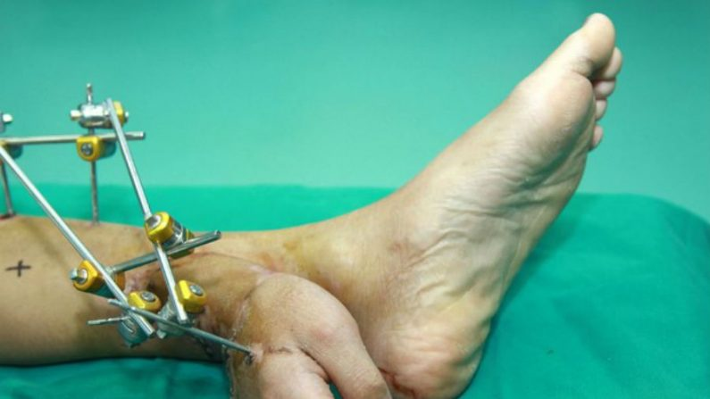 Homem acidentado tem mão enxertada em tornozelo