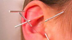 Acupuntura auricular pode ajudar na perda de peso, diz pesquisa
