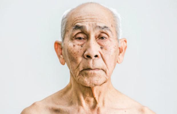 Conheça único médico que escapou dos campos de extermínio do Khmer Vermelho