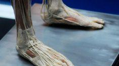 Procedência dos corpos da exibição 'Bodies' é obscura, diz pesquisador