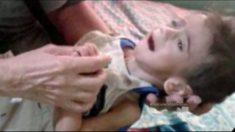 Governo de Maduro tenta esconder desnutrição infantil na Venezuela