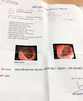 """""""Eu fui diagnosticada com proctite e uma hemorroida interna no canal anal."""""""