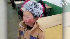 Lembram do garoto com cabelos congelados? Aqui está a dura verdade que tem sido escondida dos olhos do público