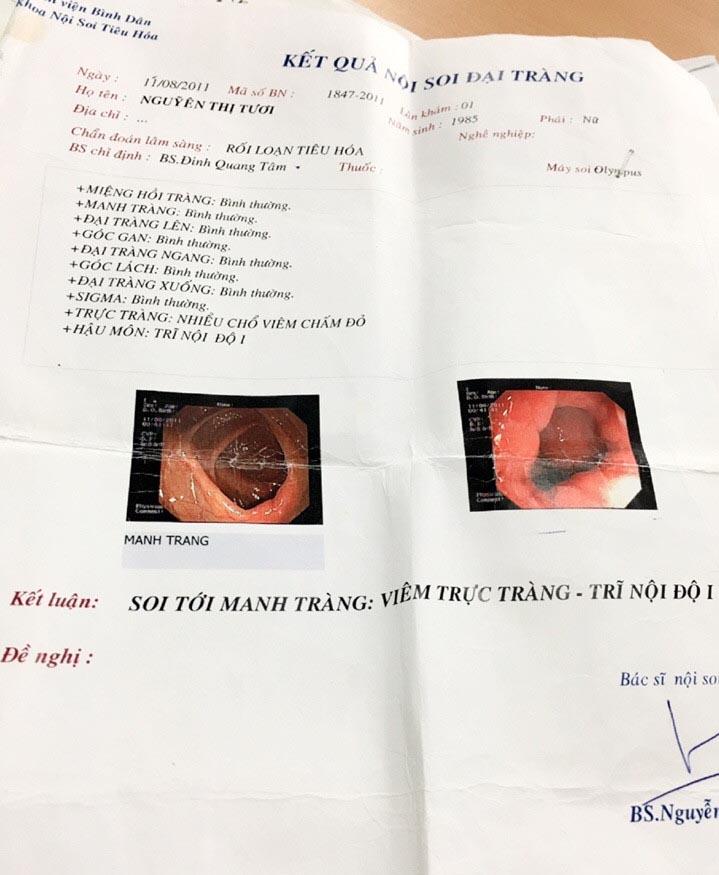 Meu ultra-som abdominal ilustrando a infecção por H. Pylori (DKN.tv)