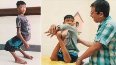Superastro de beisebol Tim Tebow transforma a vida de menino com pernas deformadas