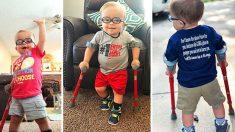 Mãe compartilha vídeo de filho de dois anos com espinha bífida aprendendo a andar