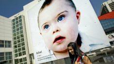 Campanha alerta sobre extinção de crianças com Síndrome de Down