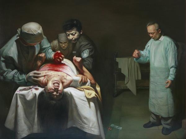 """""""Quando a tesoura cortou um vaso sanguíneo no coração, ela começou a convulsionar, foi extremamente aterrorizante"""" (©The Epoch Times)"""