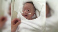 Menor bebê do mundo a sobreviver finalmente vai pra casa