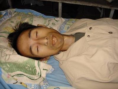 Lei Ming depois de ser libertado da prisão (Minghui.org)
