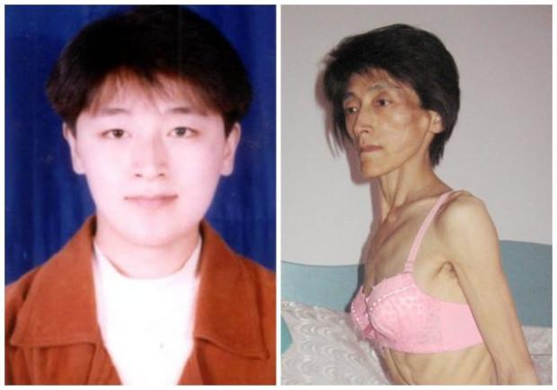 Song Yanqun antes e depois de ser enviada para a prisão, em violação das leis da própria China (Minghui.org)