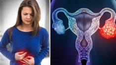 Cinco sinais que podem significar câncer de ovário – os estágios iniciais são difíceis de detectar