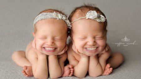 Fotógrafo edita sorrisos cheios de dentes em fotos profissionais de bebês com resultados hilariantes