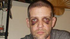 Vítima de assalto em Portland acredita que foi atacado por ser branco