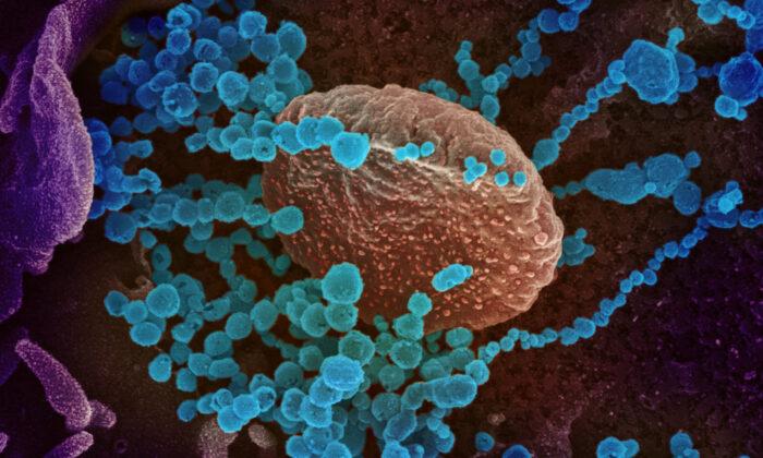 COVID-19 pode fazer com que o sistema imunológico dos pacientes ataque suas próprias células, aponta estudo