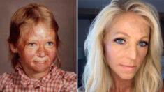 Mulher com queimaduras em 70% do corpo participa de concurso de beleza para realizar seu sonho