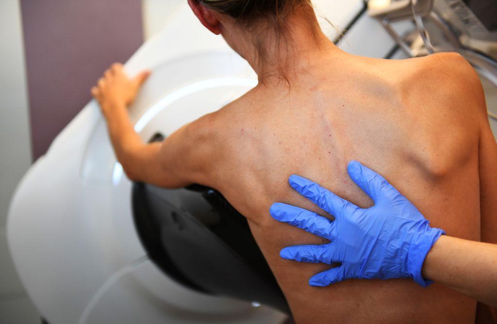 Uma paciente é fotografada antes de uma mamografia em 9 de outubro de 2017 no Paoli-Calmette Institute, um centro regional de câncer (ANNE-CHRISTINE POUJOULAT / AFP via Getty Images)